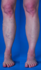 Combination Spider and Varicose Veins